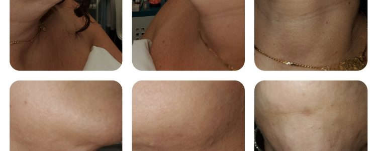 After Chin Liposuction-Lymphatic Drainage Therapy