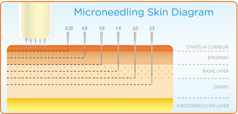 Skin layers - Collagen induction therapy