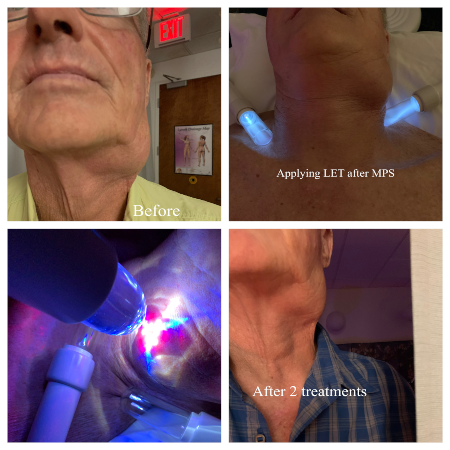 Lymphatic treatment to swollen neck nodes.